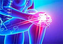 La acupuntura como alternativa para reducir el dolor en la gonartrosis