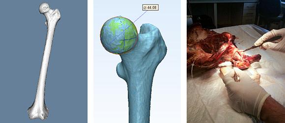 Validación de modelos paramétricos obtenidos a partir de reconstrucción 3D de hueco a través de la revisión de datos antropométricos. Pruebas en cadáver.