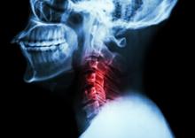 Relación de Ayuda en la Ortopedia IV - El chico de 38 años