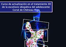 Curso de actualización en el Tratamiento 3D de la Escoliosis Idiopática del adolescente: Corsé de Chêneau-Rigo
